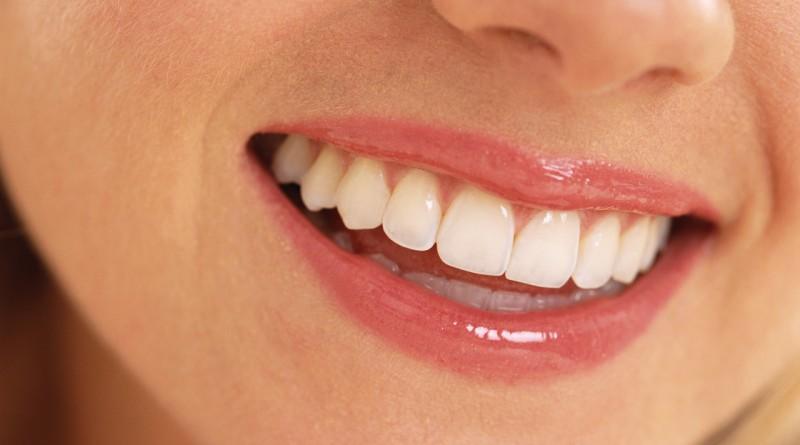 CEREC diş yapımı