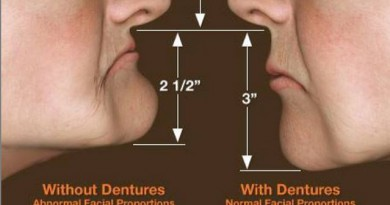 Beslenme ve diş