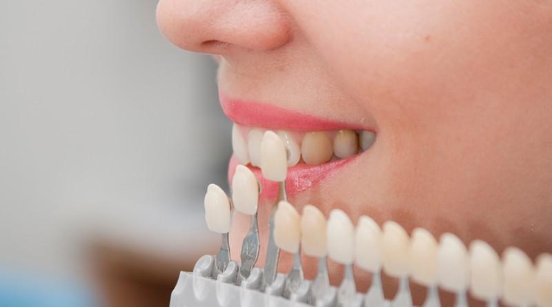 Laminate veneer Diş Fiyatı 2018 yılında ne kadar?