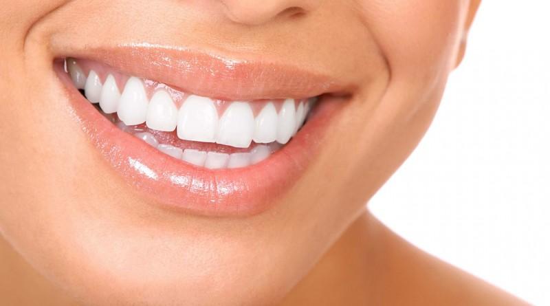 Estetik Diş tedavi fiyatları zirkonyum diş, lamina diş kaplama