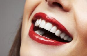Ön diş estetiği örnekleri