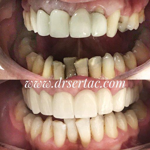 Porselen diş kaplama zirkonyum diş kaplama arasındaki fark
