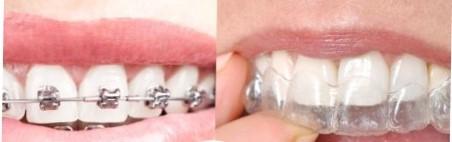 şeffaf diş teli ortodonti farki