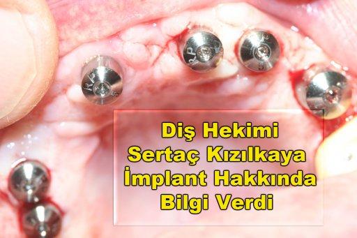 İmplant diş yapımı e implant fiyatları