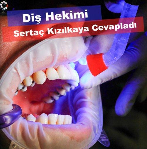Diş estetiği için diş beyazlatma, zirkonyum diş kaplama ve laminate veneer fiyatları
