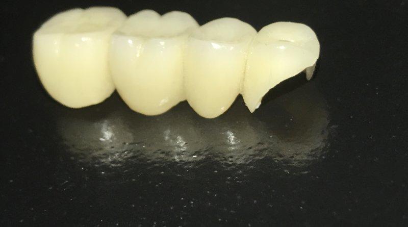 Zirkonyum diş kaplama malzeme olarak çiğneme kuvvetlerine karşı dayanıklıdır.