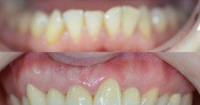 Estetik ön diş zirkonyum diş kaplama sertac kızılkaya
