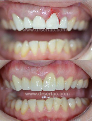 Estetik ön diş zirkonyum diş kaplama  Diş Hekimi Sertaç Kızılkaya tarafından yeniden yapılmış.