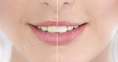Diş Beyazlatma Bilinmeyenler