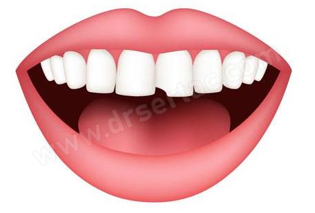 Kırık Diş