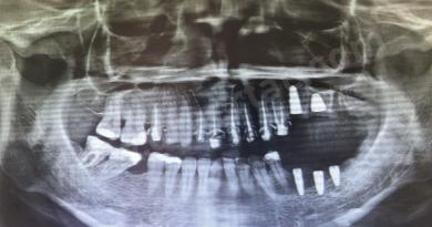 İmplant tomografi