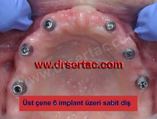 implant bütün dişlere yapılır mı